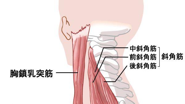 「胸鎖乳突筋」の凝りから来る頭痛について